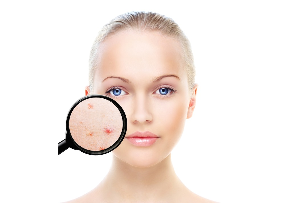 Misconceptions about acne